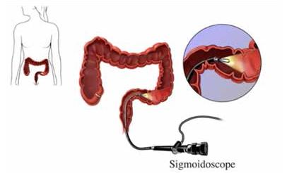 flexible_sigmoidoscopy_img